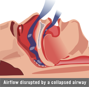 Airflow being disrupted in sleep apnea